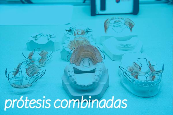 protesis-combinadas